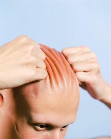 Guille-sofria-bullying-por-ter-Alopécia