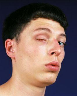 Jordi-teve-seu-olho-removido-quando-era-criança-por-conta-de-um-tumor-que-crescia-atrás-dele.-Hoje-ele-usa-uma-prótese-no-lugar-do-olho-perdido1