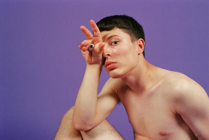 Jordi-teve-seu-olho-removido-quando-era-criança-por-conta-de-um-tumor-que-crescia-atrás-dele.-Hoje-ele-usa-uma-prótese-no-lugar-do-olho-perdido2