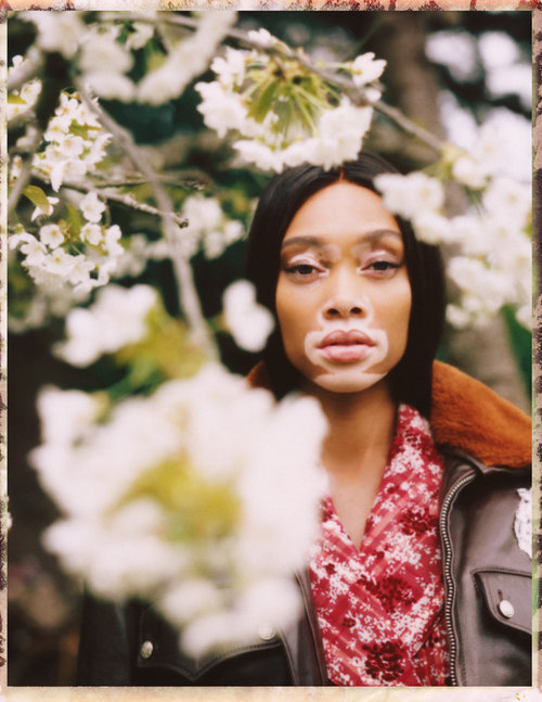 Winnie+Harlow+by+Emily+Soto+Vogue+UA